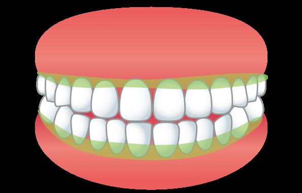 歯と歯茎のふち